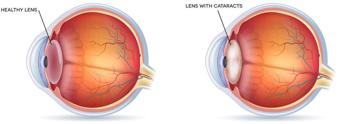 Healthy Eye, Eye with Cataract