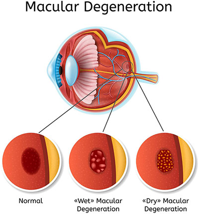Zusman Eyecare Center treats macular degeneration